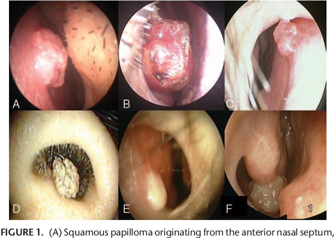 papillomavirus symptomes bouche