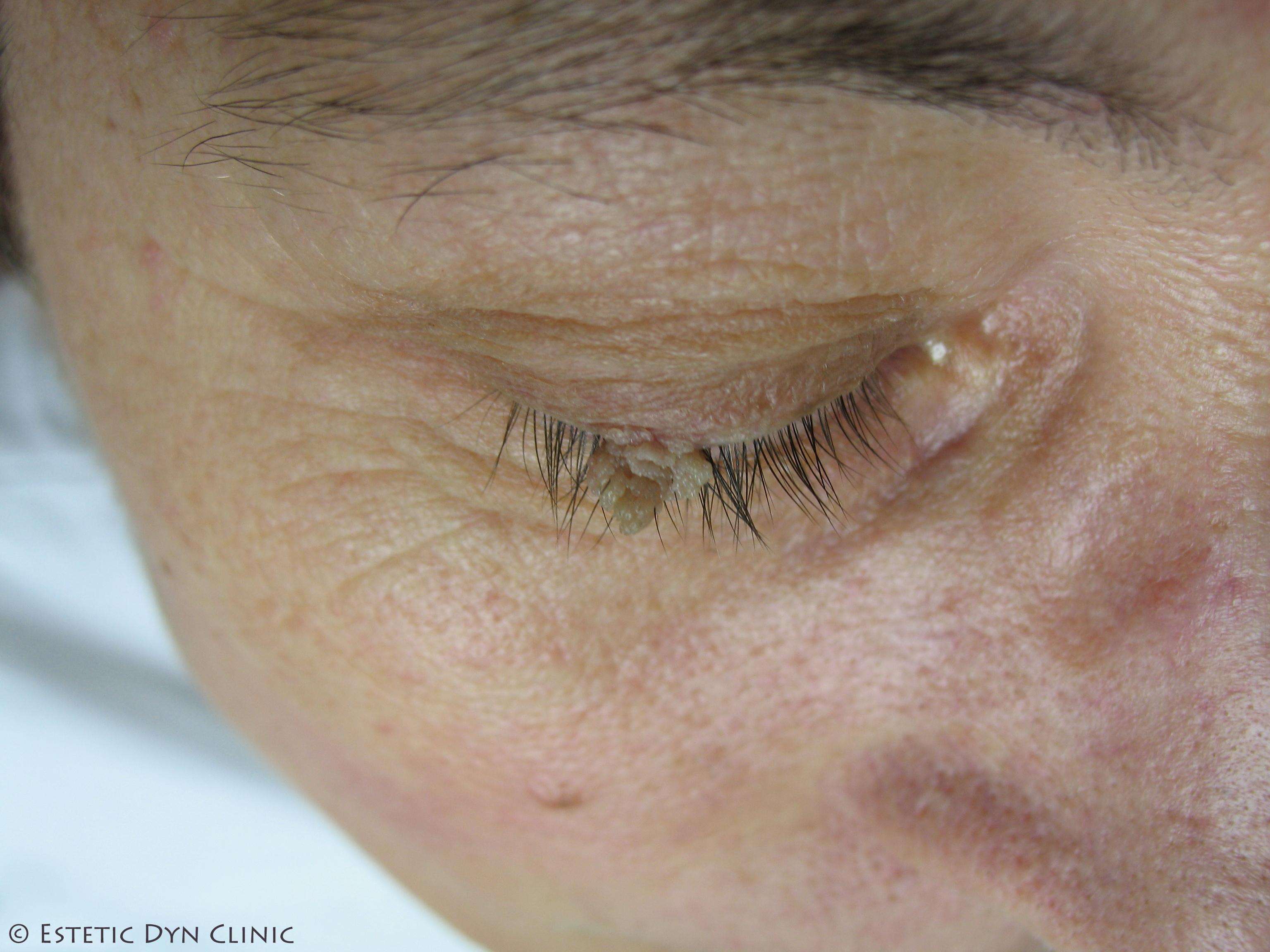 tratament pentru viermi lambli simptome cancer hepatocelular