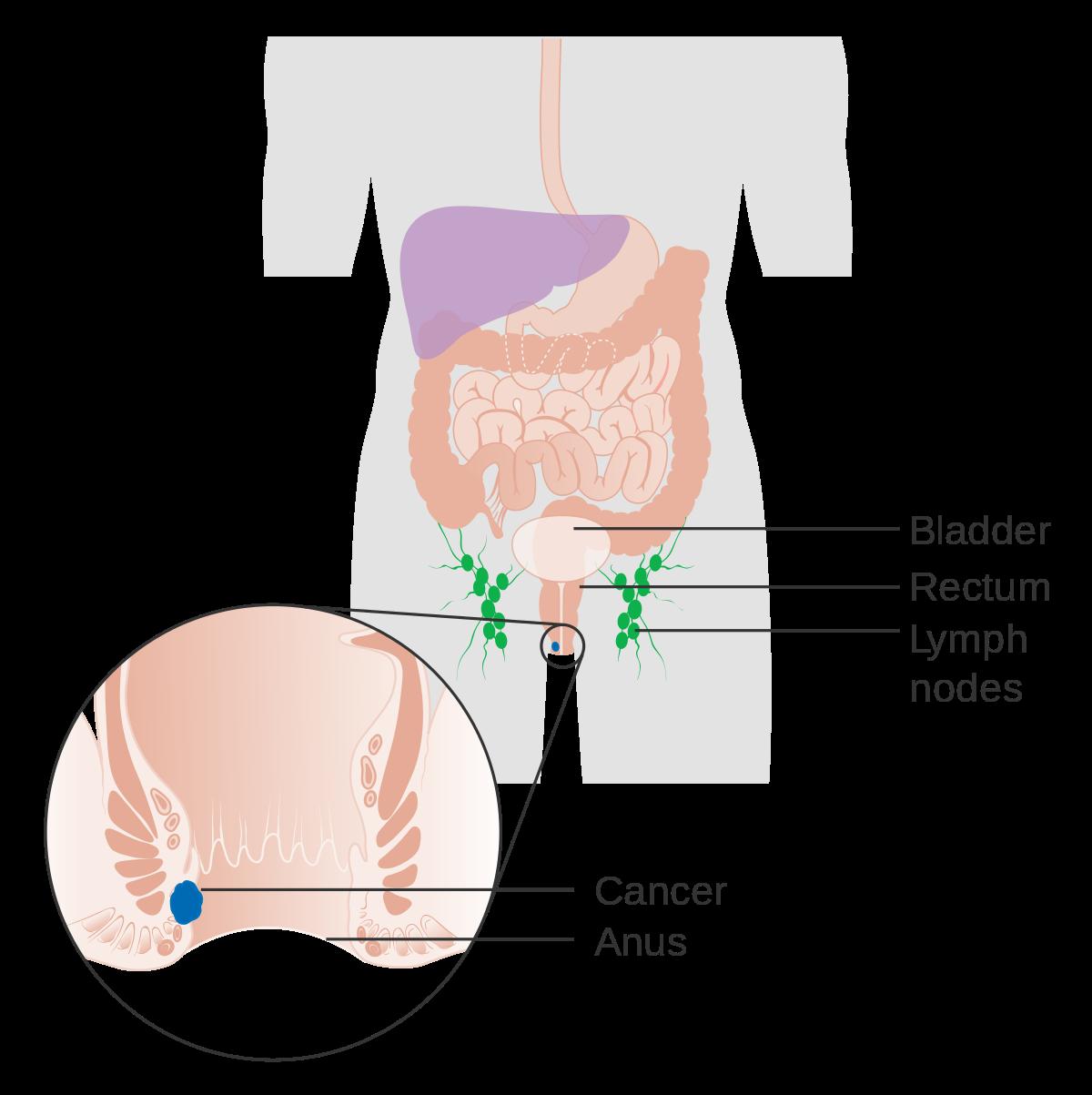 papiloma ano rectal