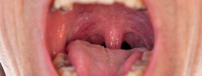 papiloma boca dolor