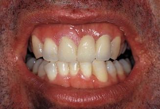 Papilloma gingiva - Gingival squamous papilloma