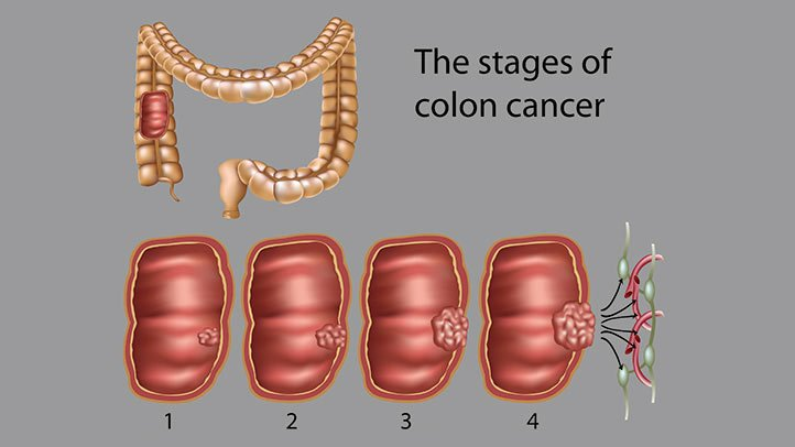 hpv tumore bocca forum simptom pentru giardia