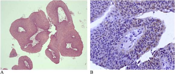 respiratory epithelium papilloma ce viermi provoacă stupi