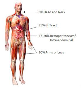 Sarcom - Tot ce trebuie să ştii despre acest tip de cancer - Cancer Sarcoma cancer abdomen