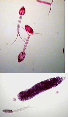 papillomavirus stade 3 conisation ce vindecă viermii la oameni
