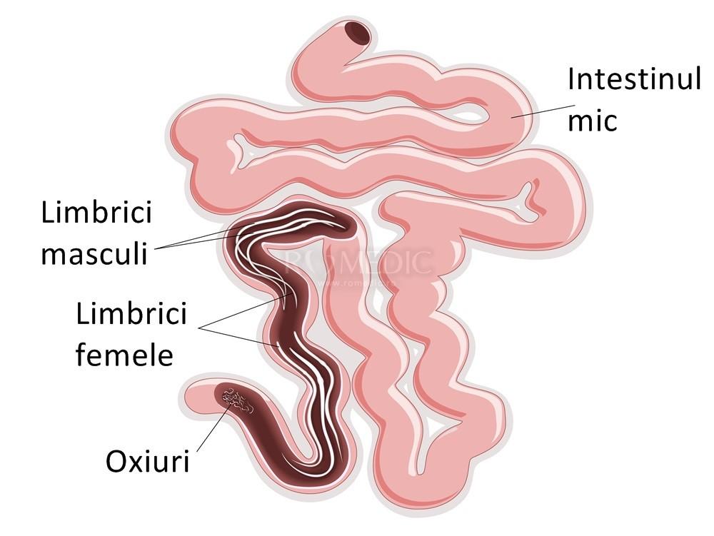 semne de viermi la copii mici enterobius vermicularis genero y especie