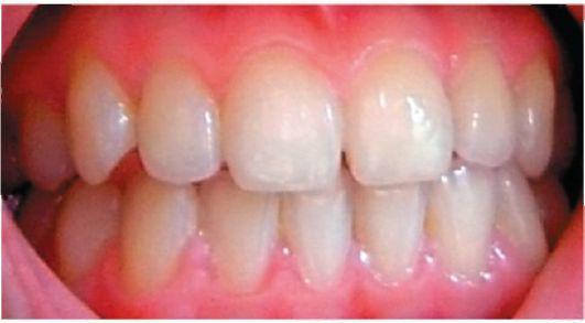 sentimente de boli dentare