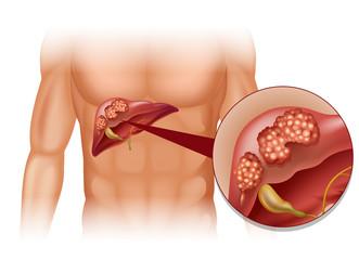 Carcinom hepatocelular – cauze, simptome, diagnostic și tratament