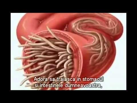 simptome viermi inimii la om