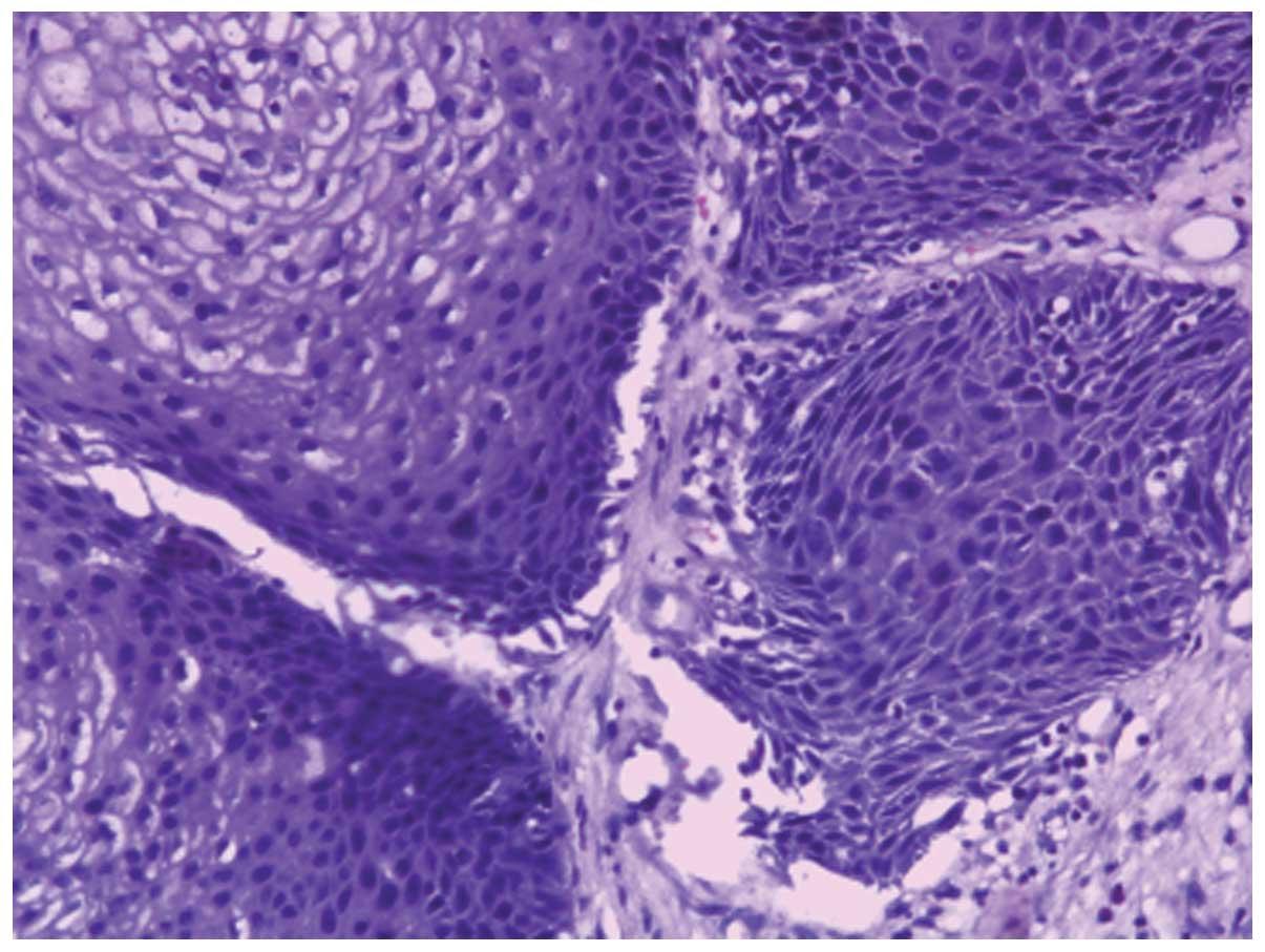 Laryngeal papillomatosis dysplasia, Papillomatosis with dysplasia