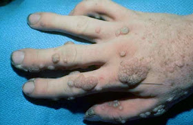 skin papilloma definition