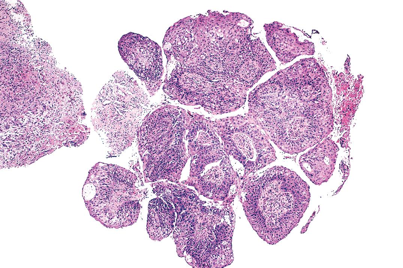 squamous papilloma bronchus