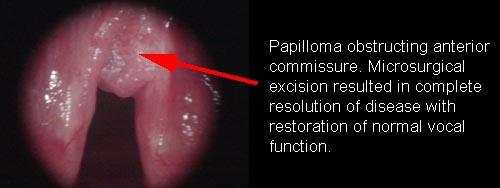 squamous papilloma larynx treatment