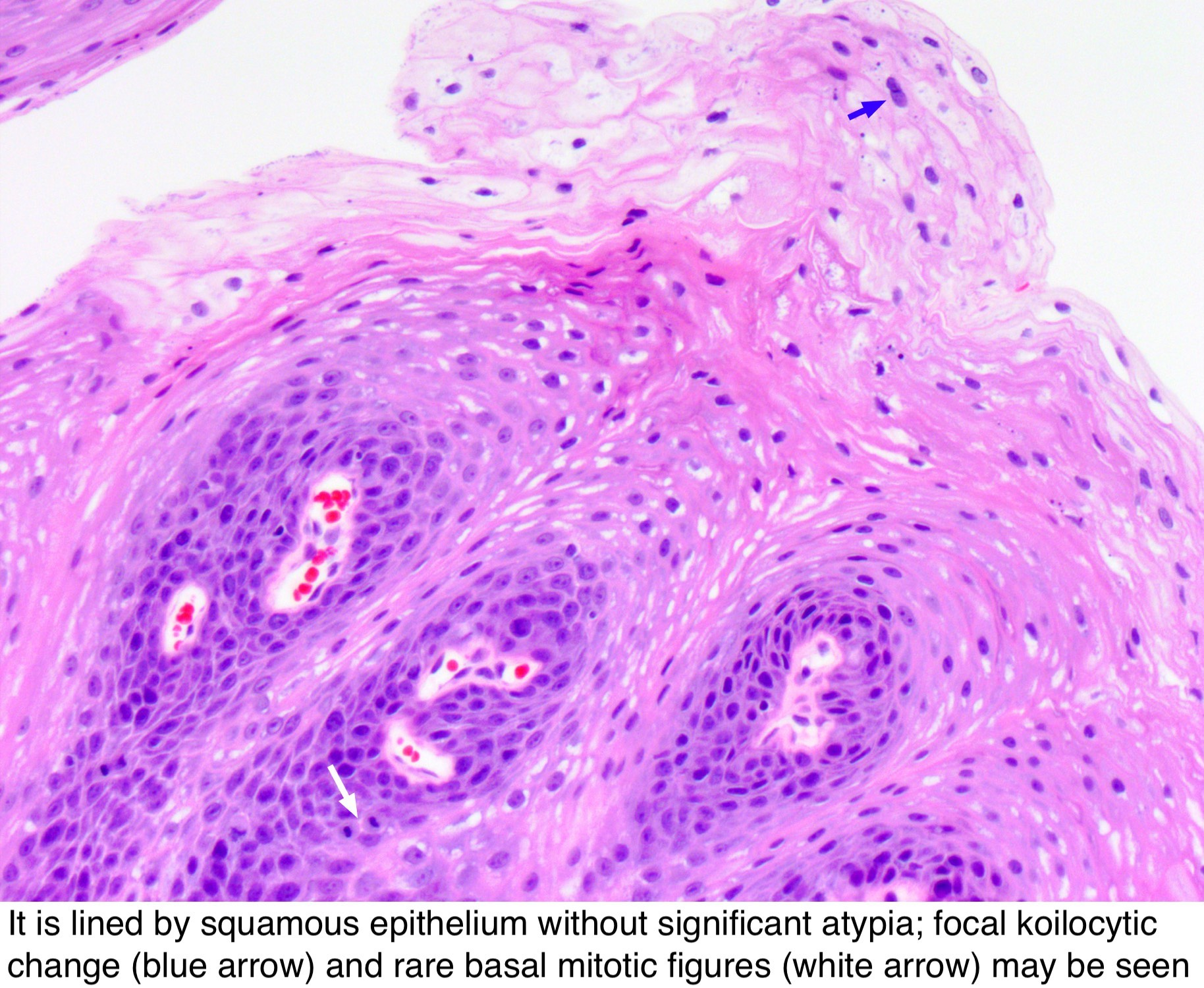 Squamous papilloma polyp Hpv vaccine pathology