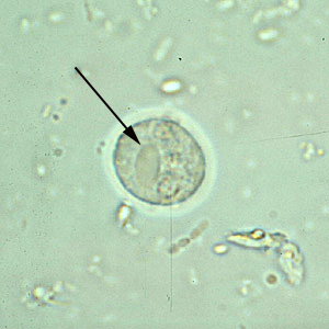parazitii membrii