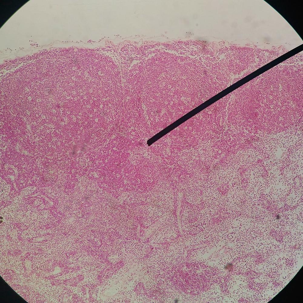 terapia antivirale papilloma virus
