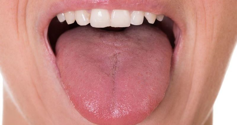 metronidazol giardia canina sintomi del papillomavirus in gola