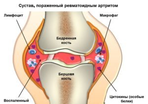 tratamentul helmintelor musculare