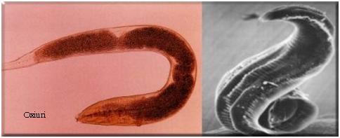 papilom inflamat sub braț cum să scoți un parazit din ochi
