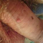 Verrues hpv femme. Papillomavirus humain symptomes chez lhomme