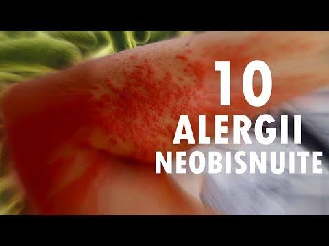 vindeca infecțiile parazitare detoxifiere pt slabit
