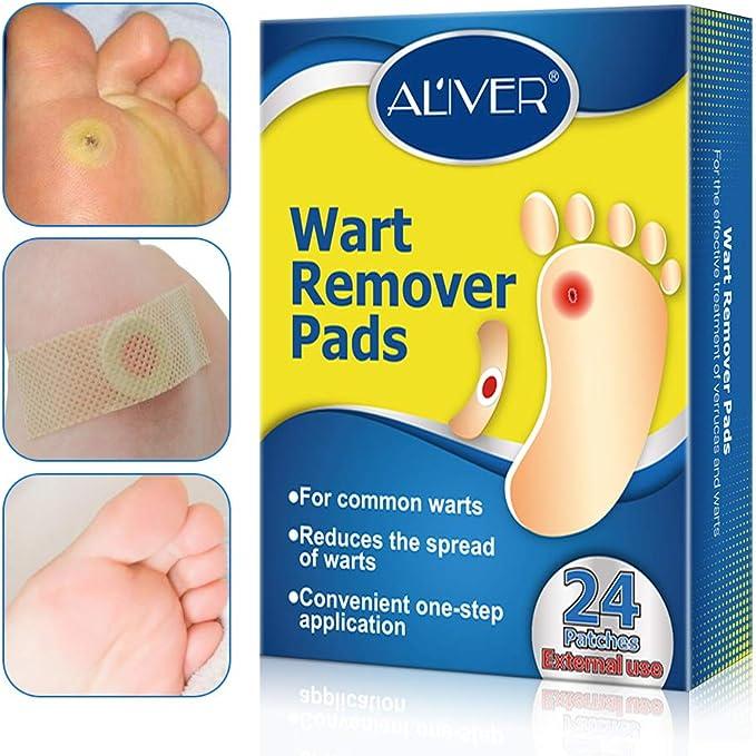 Wart foot remedy