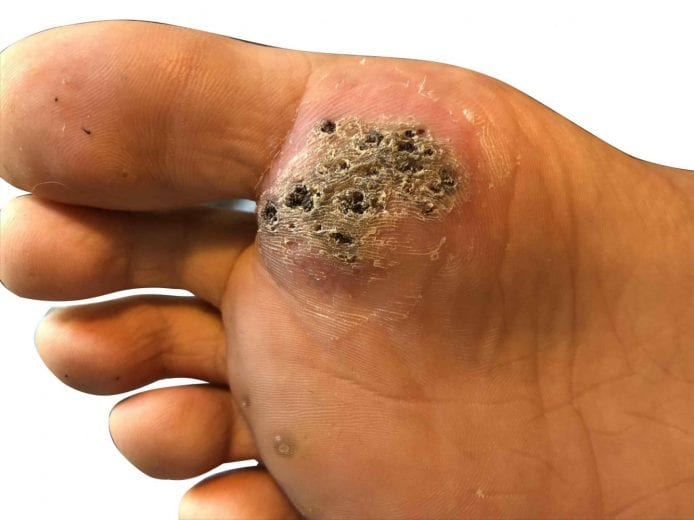 wart on foot will not go away