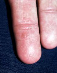 パタゴニア Patagonia レディース ハイキング·登山 ボトムス·パンツ【Skyline Traveler Pant】Black - Wart virus starting with m